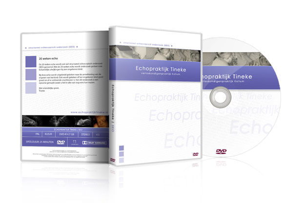 dvd-echo-tineke